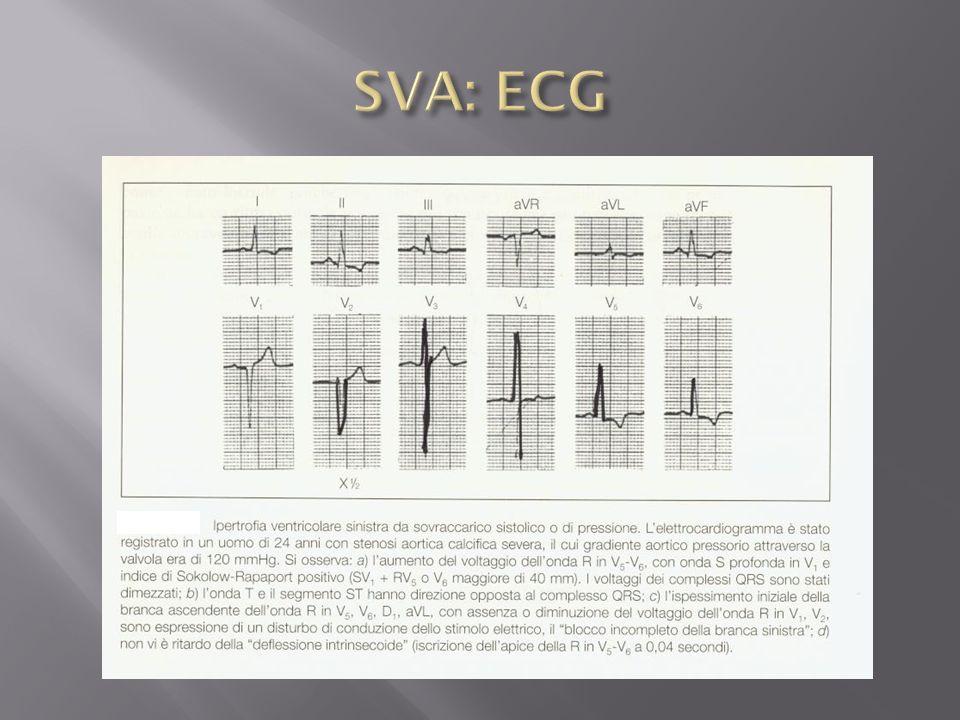 SVA: ECG