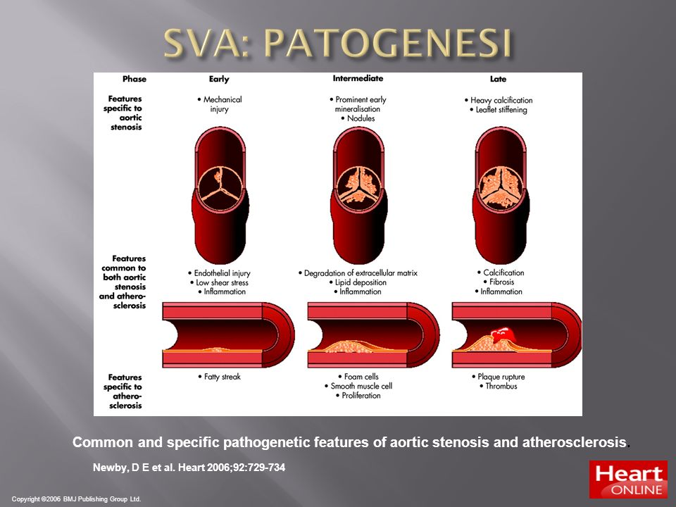 SVA: PATOGENESI Common and specific pathogenetic features of aortic stenosis and atherosclerosis. Newby, D E et al. Heart 2006;92:729-734.