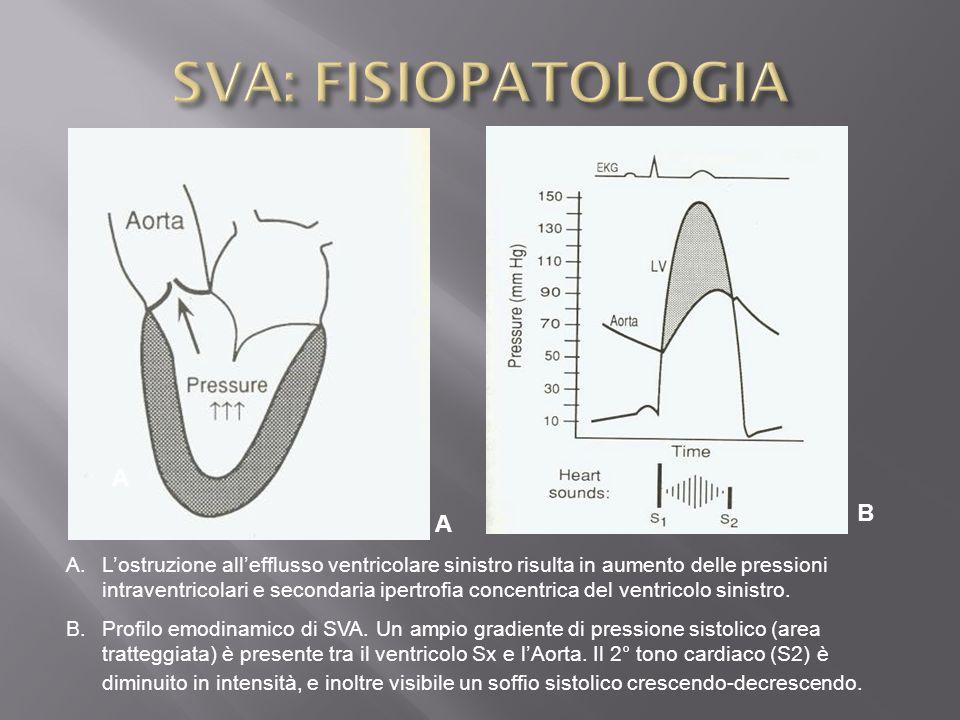SVA: FISIOPATOLOGIA A B A