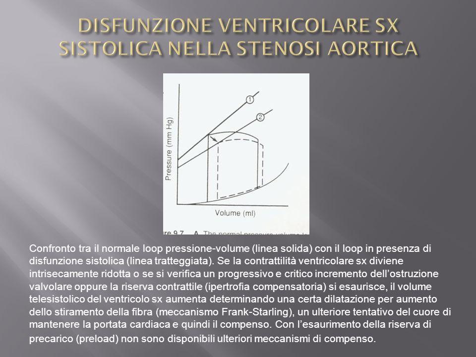 DISFUNZIONE VENTRICOLARE SX SISTOLICA NELLA STENOSI AORTICA