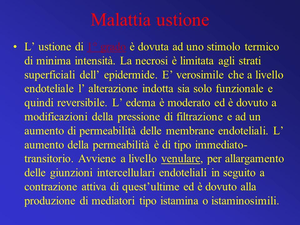 Malattia ustione