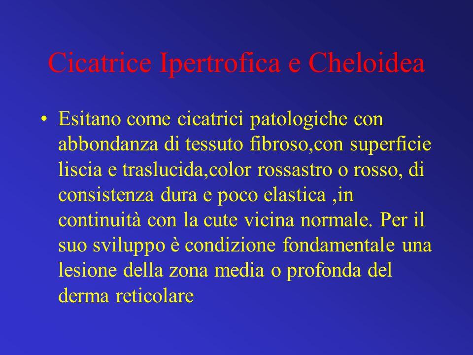 Cicatrice Ipertrofica e Cheloidea