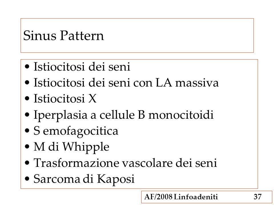 Sinus Pattern Istiocitosi dei seni Istiocitosi dei seni con LA massiva