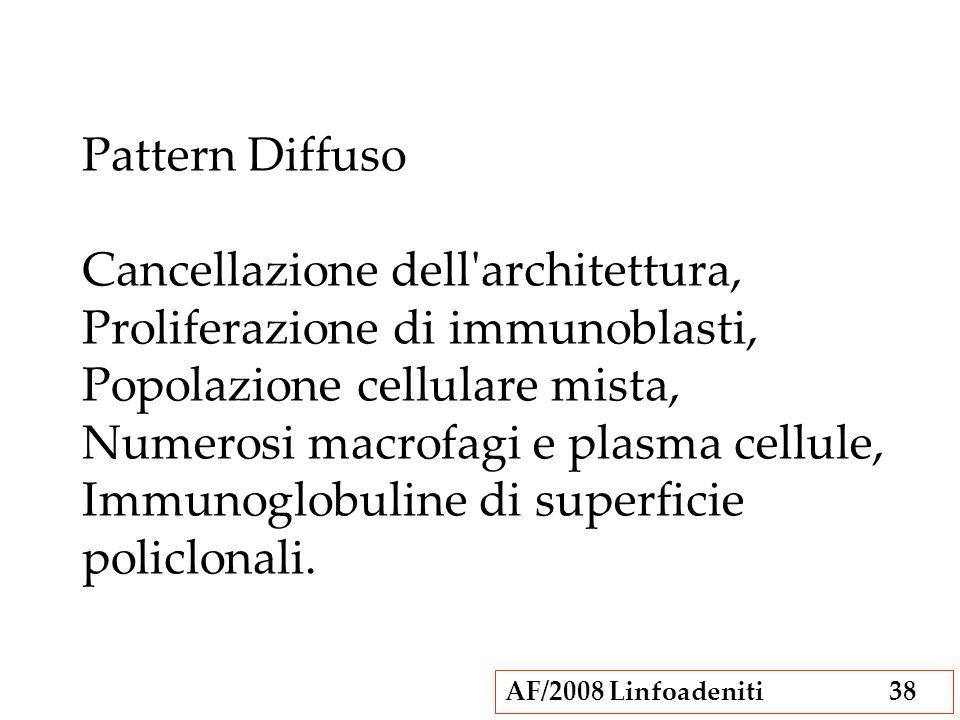 Pattern Diffuso Cancellazione dell architettura, Proliferazione di immunoblasti, Popolazione cellulare mista, Numerosi macrofagi e plasma cellule, Immunoglobuline di superficie policlonali.