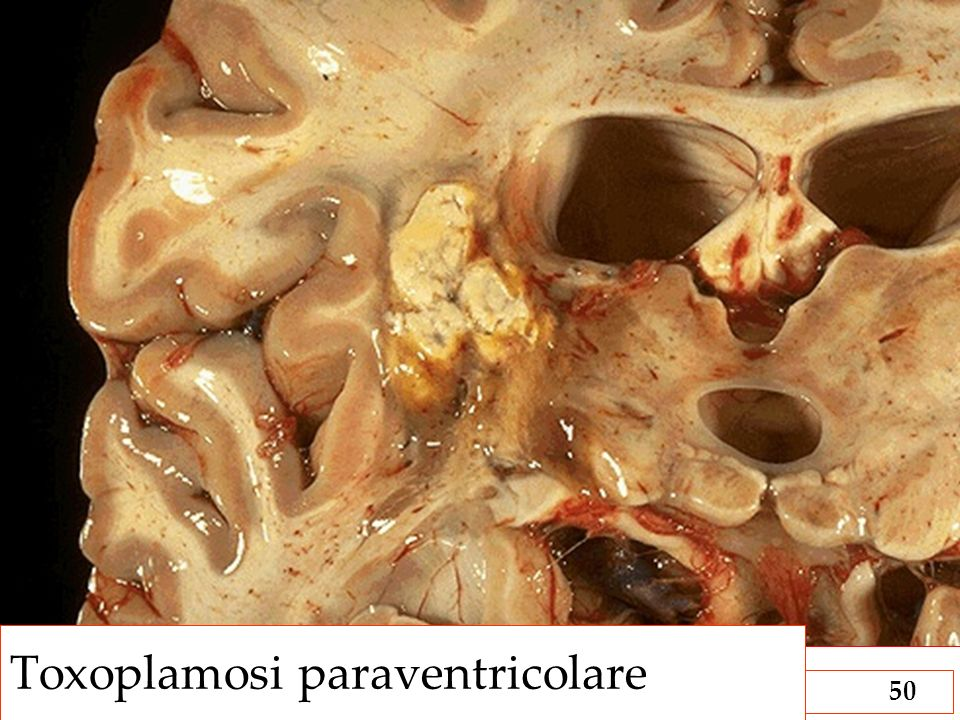 Toxoplamosi paraventricolare
