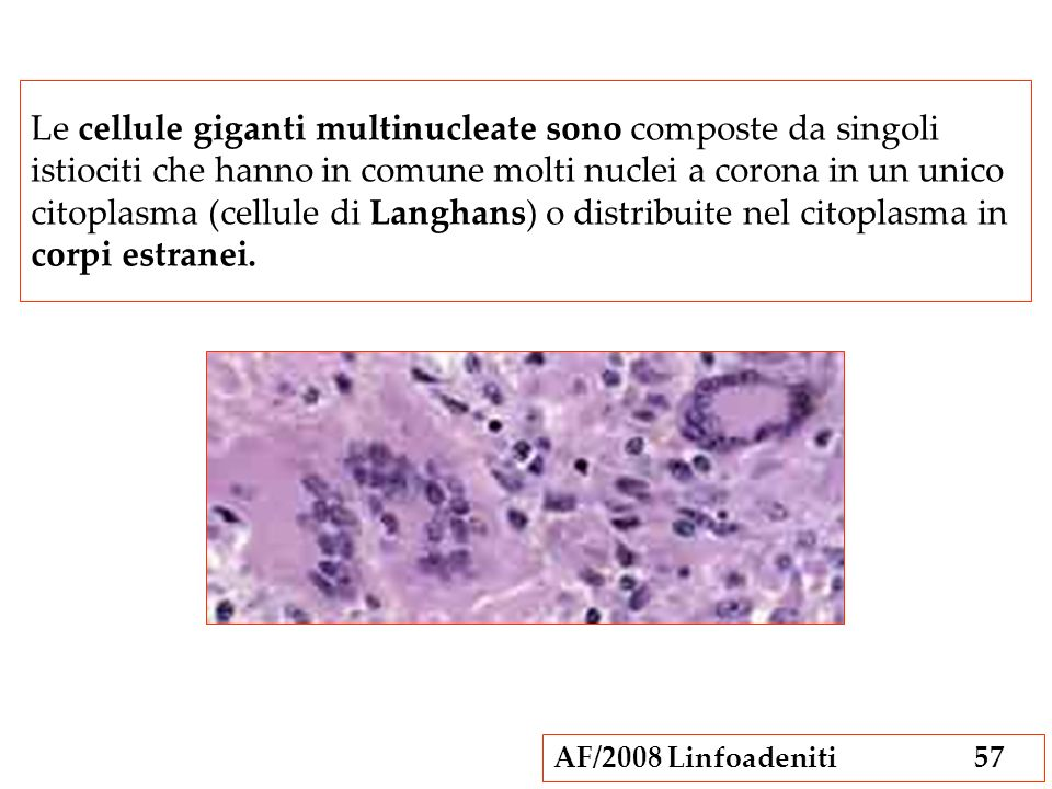 Le cellule giganti multinucleate sono composte da singoli istiociti che hanno in comune molti nuclei a corona in un unico citoplasma (cellule di Langhans) o distribuite nel citoplasma in corpi estranei.