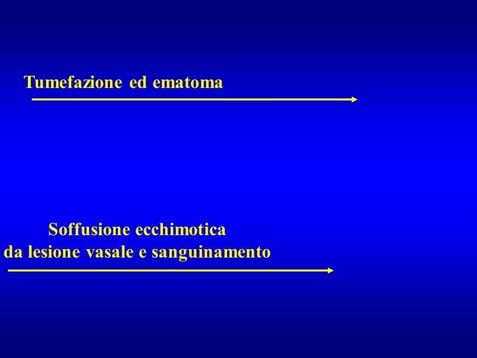 Tumefazione ed ematoma