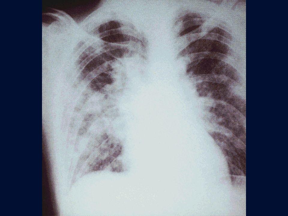 Polmonite varicellosa in paziente con m. di Hodgkin