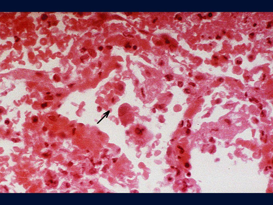 Polmonite da CMV.