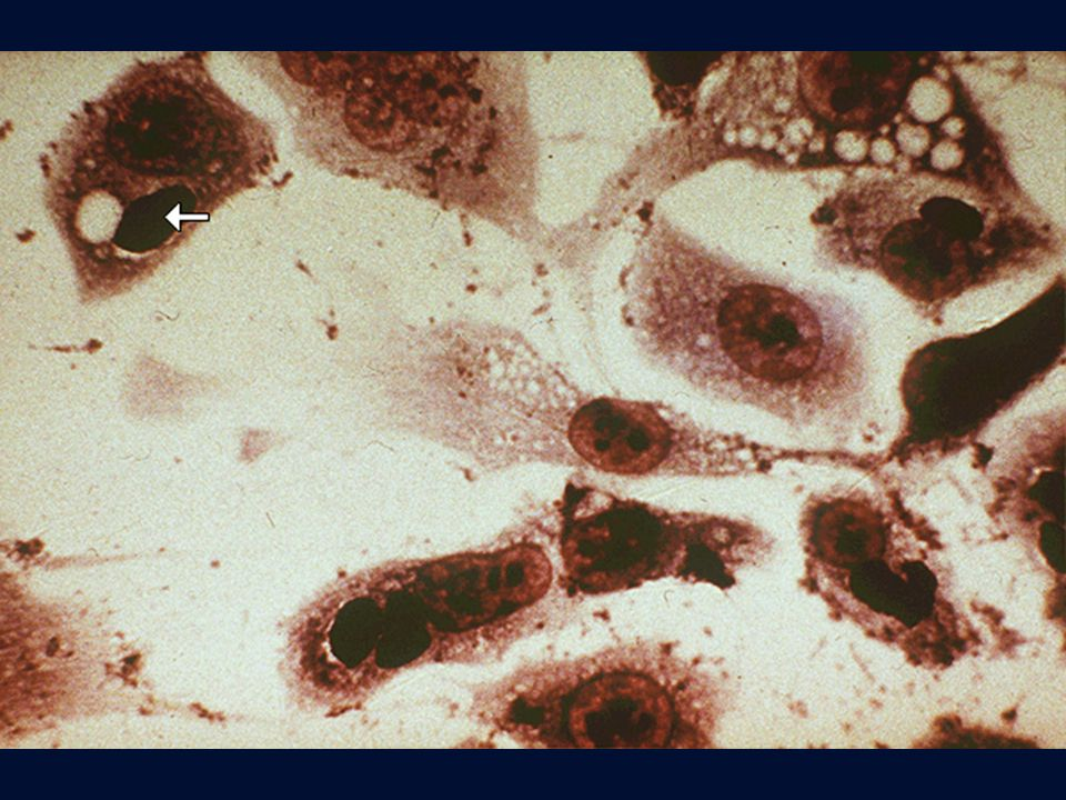 Chlamydia pneumoniae in coltura di cellule McCoy, microcolonie iodofile.
