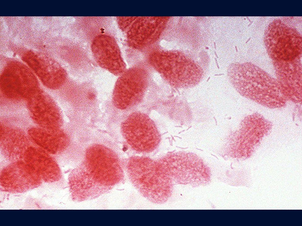 Legionella in biopsia bronchiale ottenuta mediante fibroscopia bronchiale. Gram.
