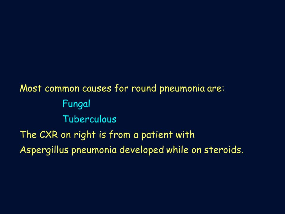 Most common causes for round pneumonia are: