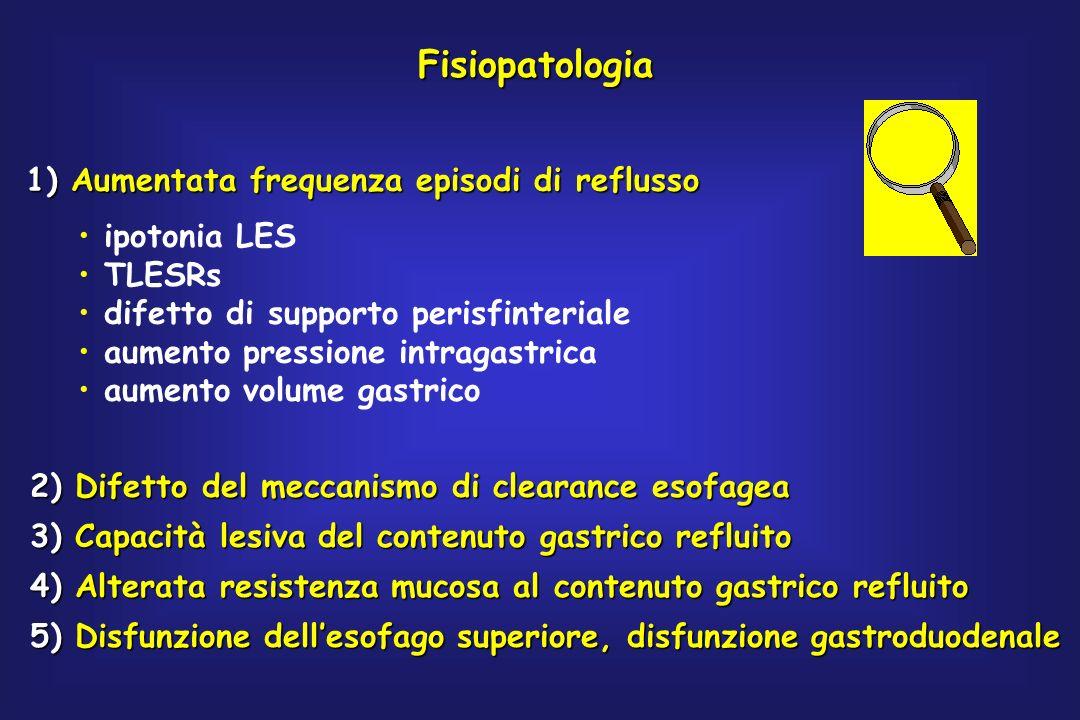 Fisiopatologia 1) Aumentata frequenza episodi di reflusso ipotonia LES