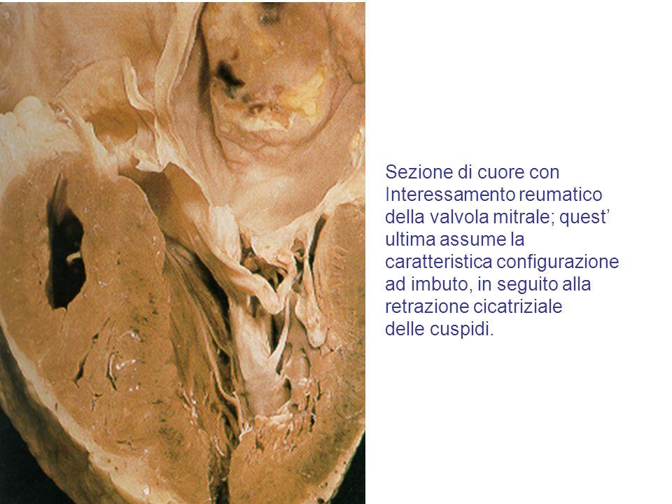 Sezione di cuore con Interessamento reumatico. della valvola mitrale; quest' ultima assume la. caratteristica configurazione.
