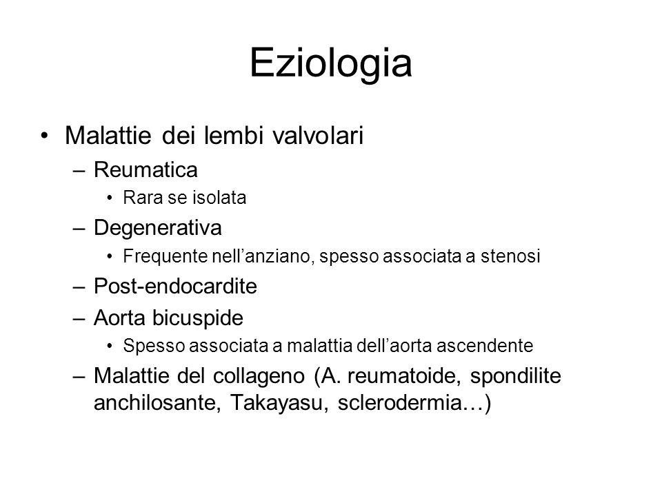 Eziologia Malattie dei lembi valvolari Reumatica Degenerativa