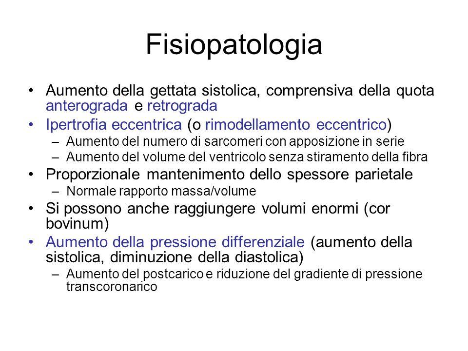 Fisiopatologia Aumento della gettata sistolica, comprensiva della quota anterograda e retrograda.