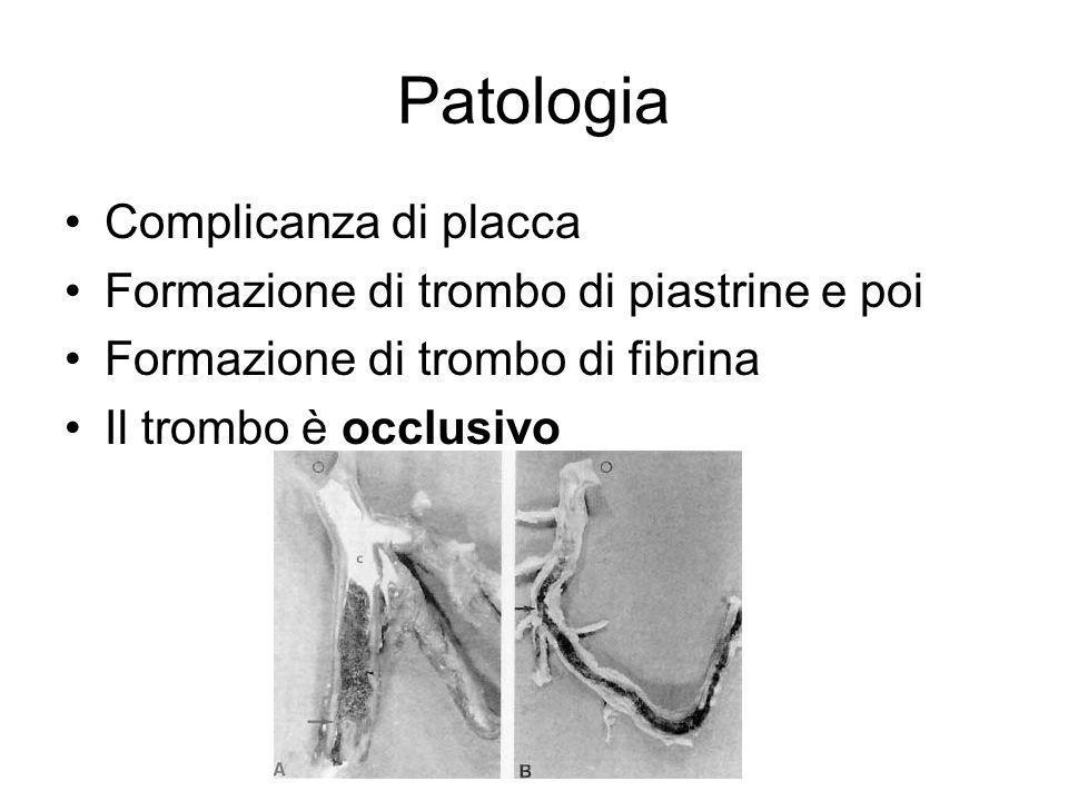 Patologia Complicanza di placca