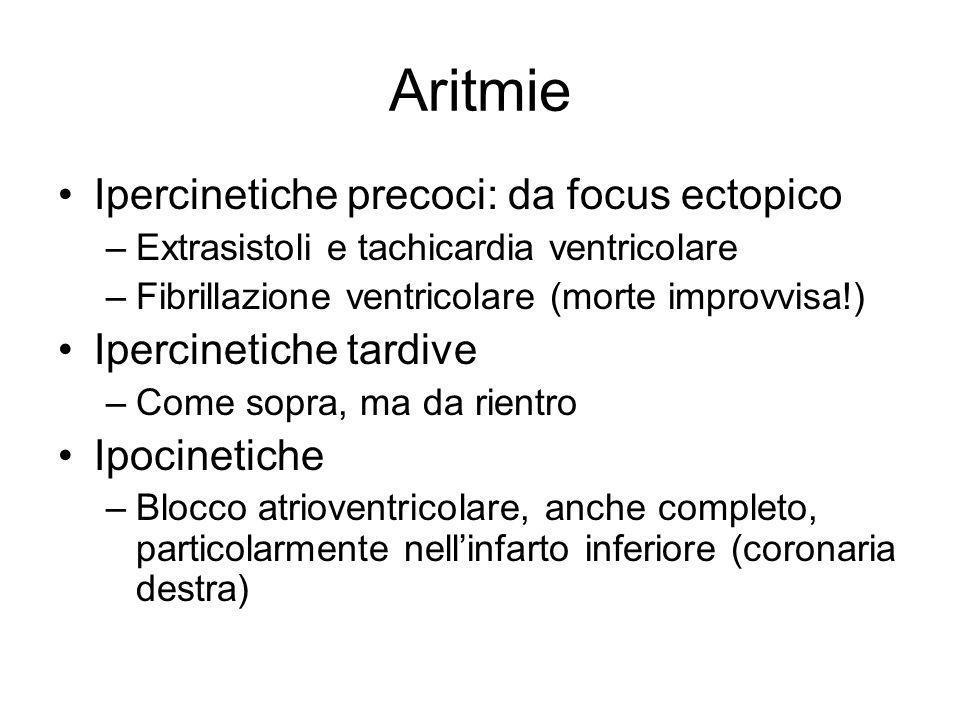 Aritmie Ipercinetiche precoci: da focus ectopico Ipercinetiche tardive