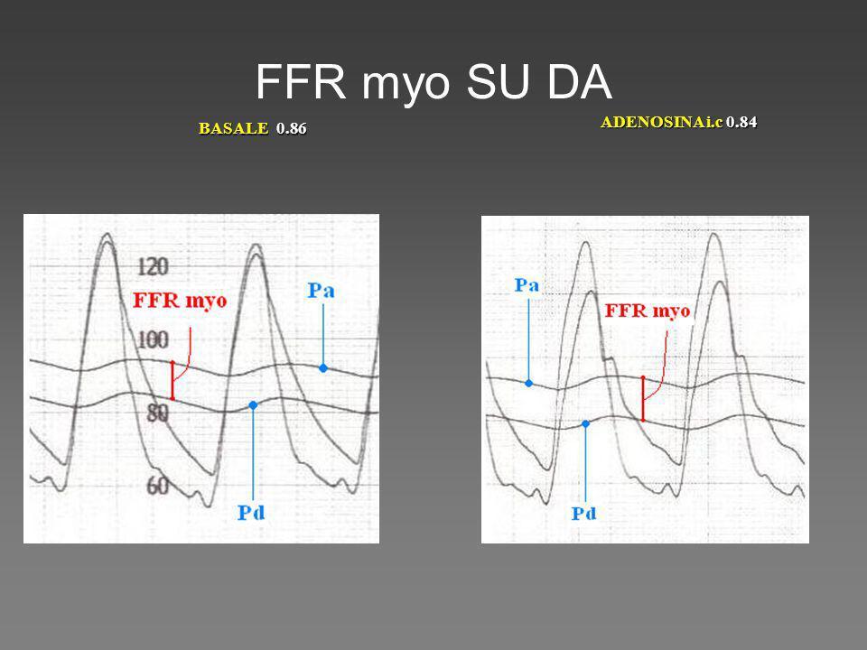 FFR myo SU DA ADENOSINA i.c 0.84 BASALE 0.86