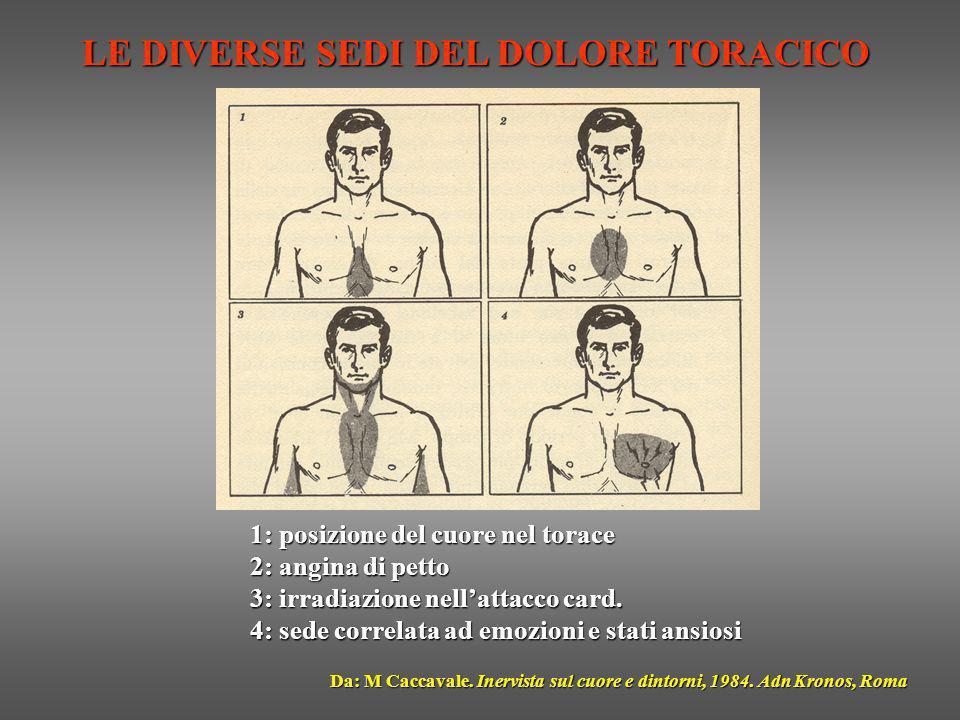 LE DIVERSE SEDI DEL DOLORE TORACICO