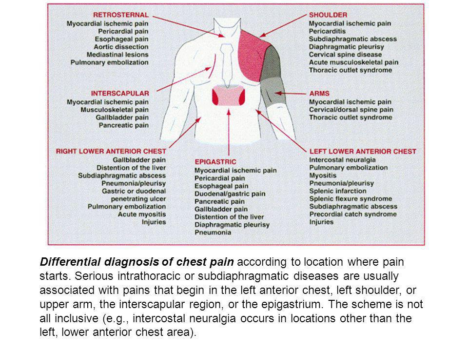 Differential diagnosis of chest pain according to location where pain starts.