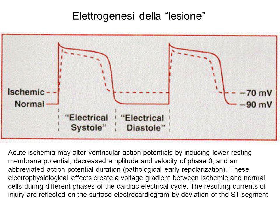 Elettrogenesi della lesione