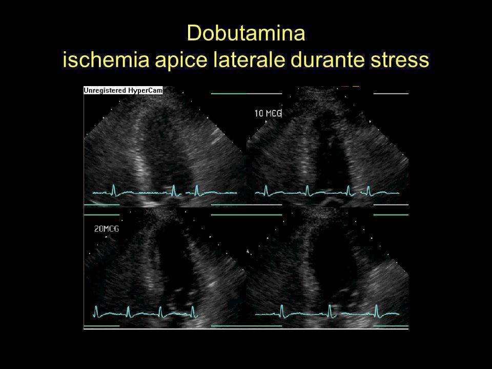 Dobutamina ischemia apice laterale durante stress