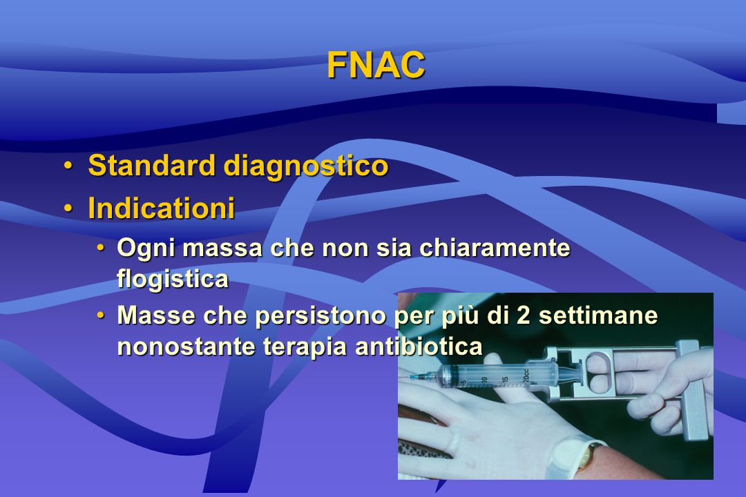FNAC Standard diagnostico Indicationi