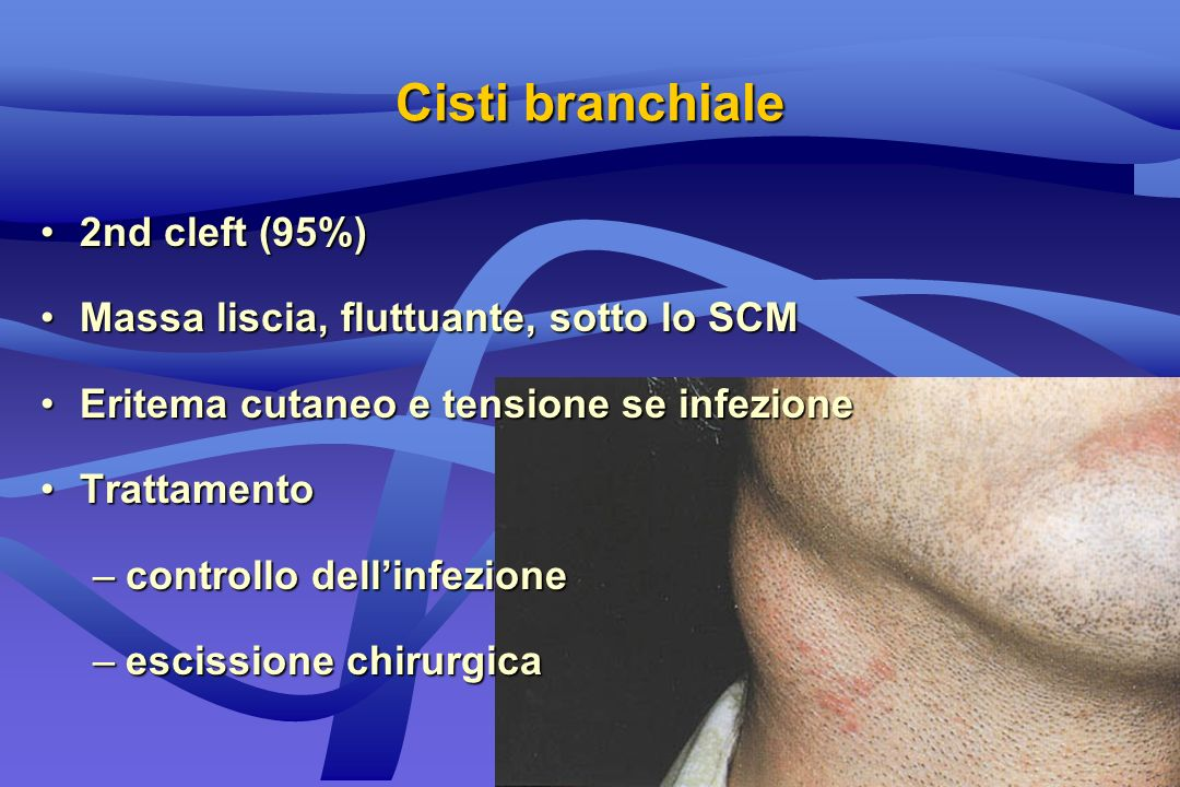 Cisti branchiale 2nd cleft (95%)