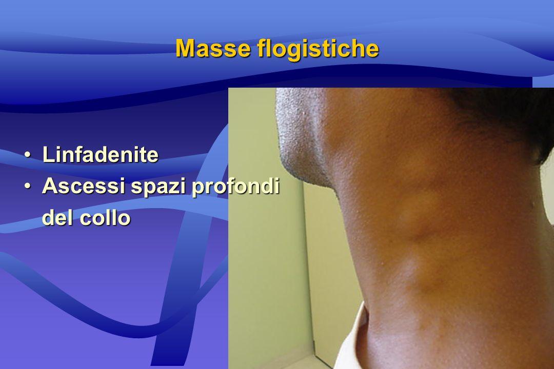 Masse flogistiche Linfadenite Ascessi spazi profondi del collo