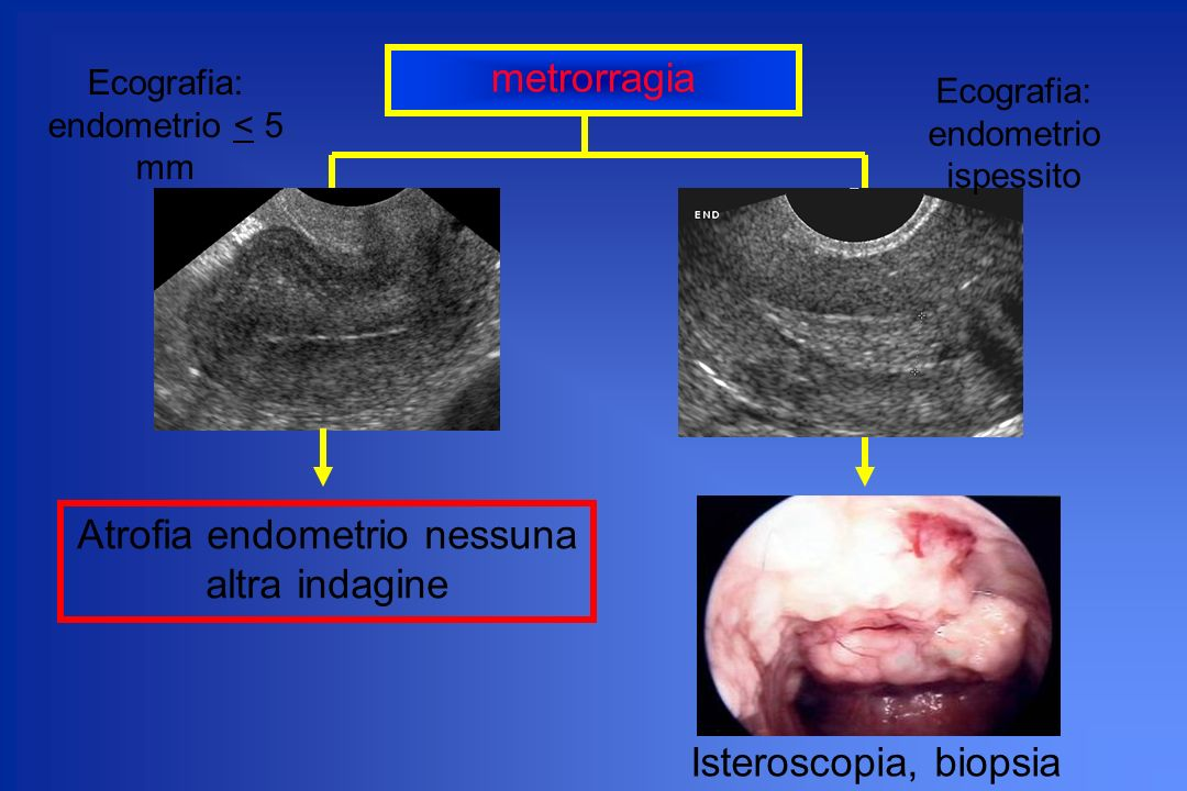 Atrofia endometrio nessuna altra indagine