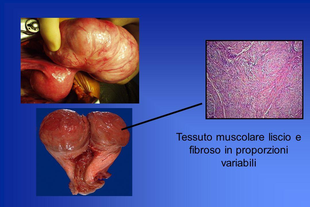 Tessuto muscolare liscio e fibroso in proporzioni variabili