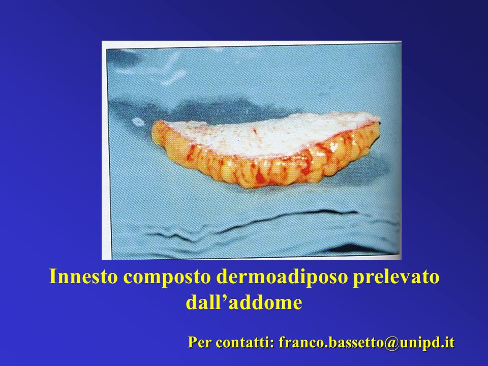 Innesto composto dermoadiposo prelevato dall'addome
