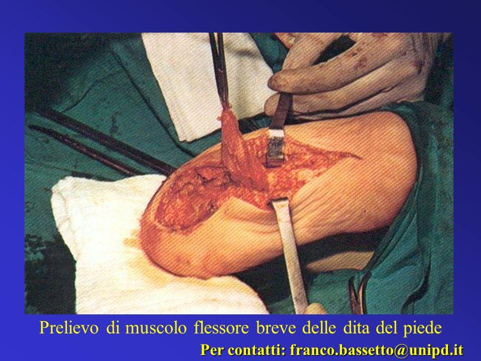 Prelievo di muscolo flessore breve delle dita del piede