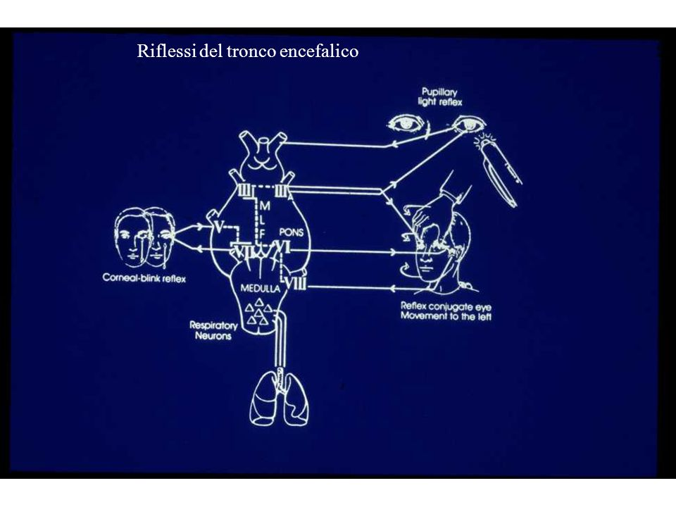 Riflessi del tronco encefalico