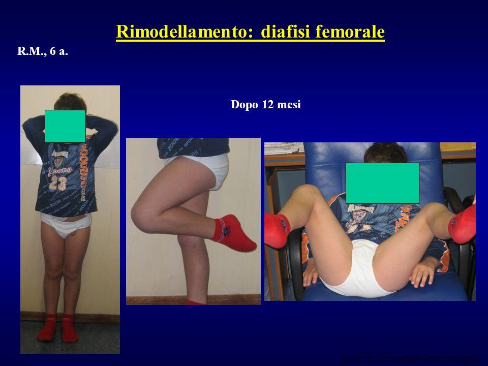 Rimodellamento: diafisi femorale
