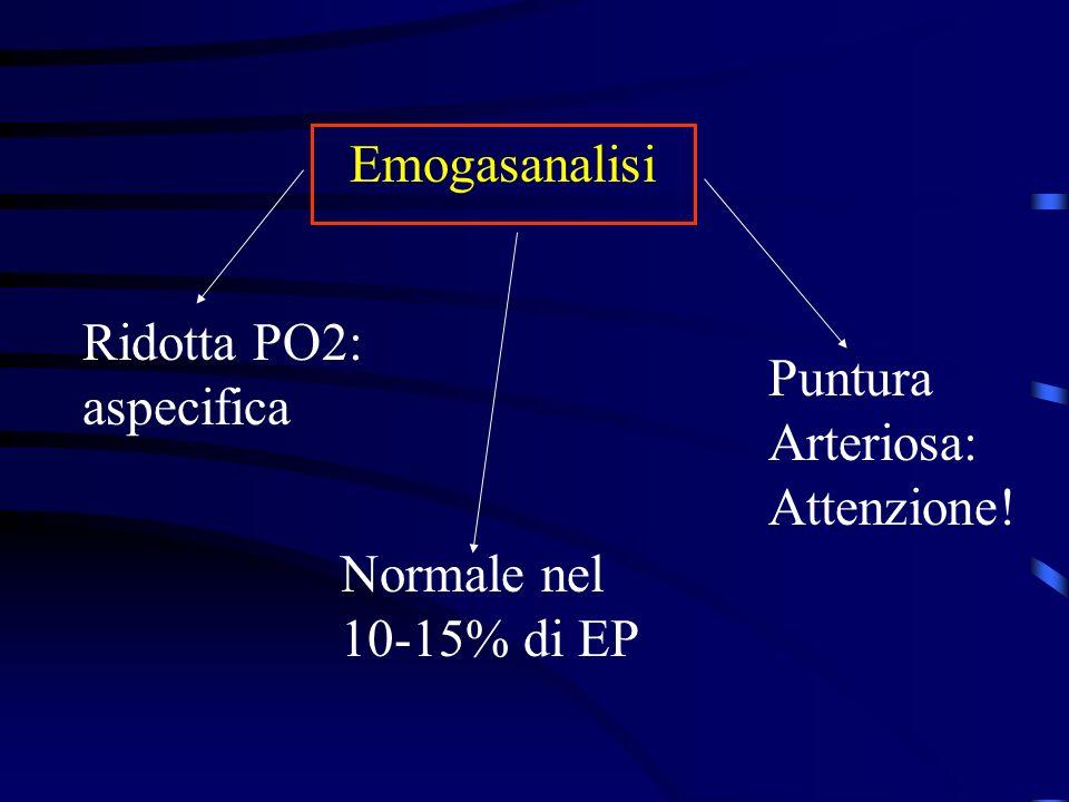 Emogasanalisi Ridotta PO2: aspecifica Puntura Arteriosa: Attenzione! Normale nel 10-15% di EP
