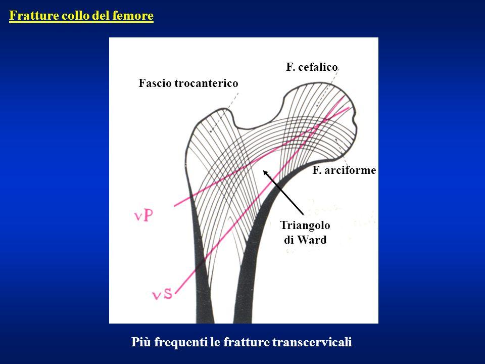 Fratture collo del femore
