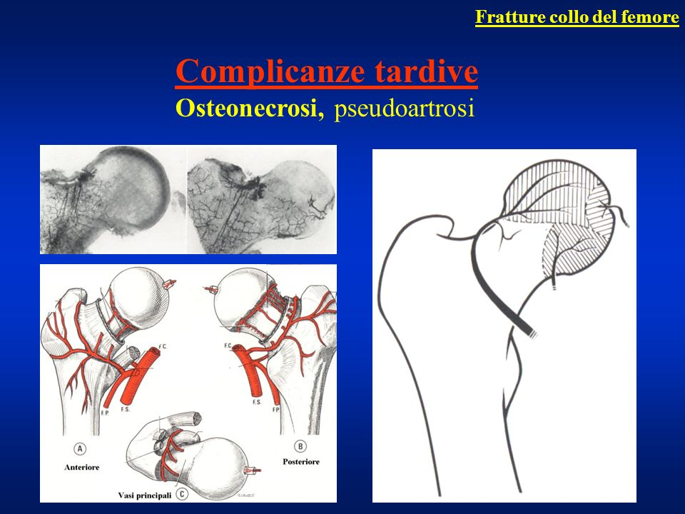 Complicanze tardive Osteonecrosi, pseudoartrosi