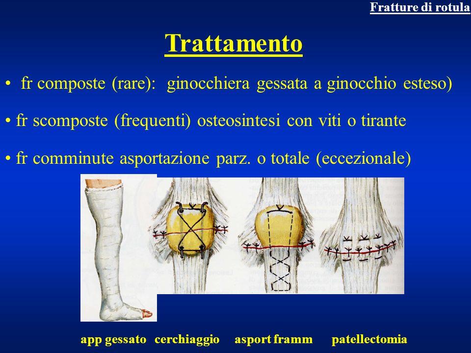 Fratture di rotulaTrattamento. fr composte (rare): ginocchiera gessata a ginocchio esteso) fr scomposte (frequenti) osteosintesi con viti o tirante.