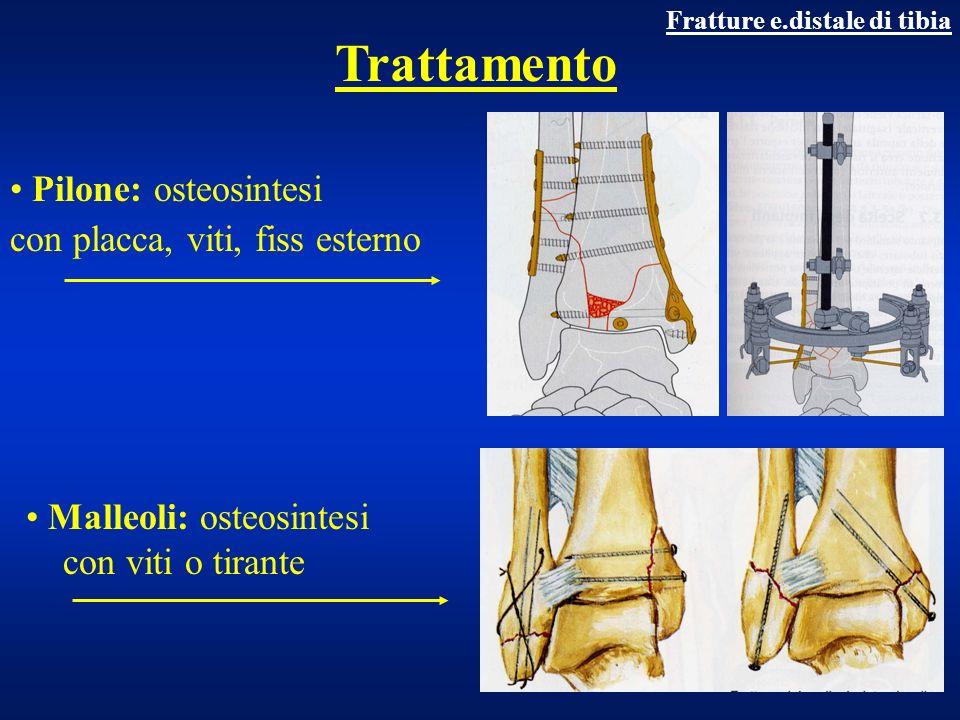 Trattamento Pilone: osteosintesi con placca, viti, fiss esterno