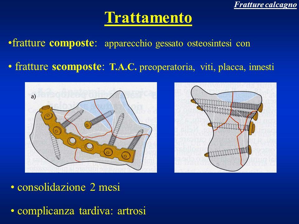 Trattamento fratture composte: apparecchio gessato osteosintesi con
