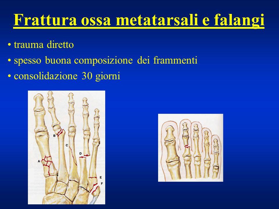 Frattura ossa metatarsali e falangi