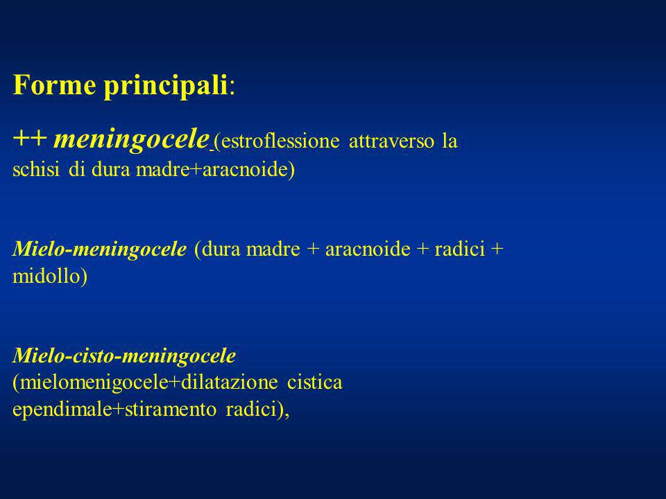 Forme principali: ++ meningocele (estroflessione attraverso la schisi di dura madre+aracnoide)