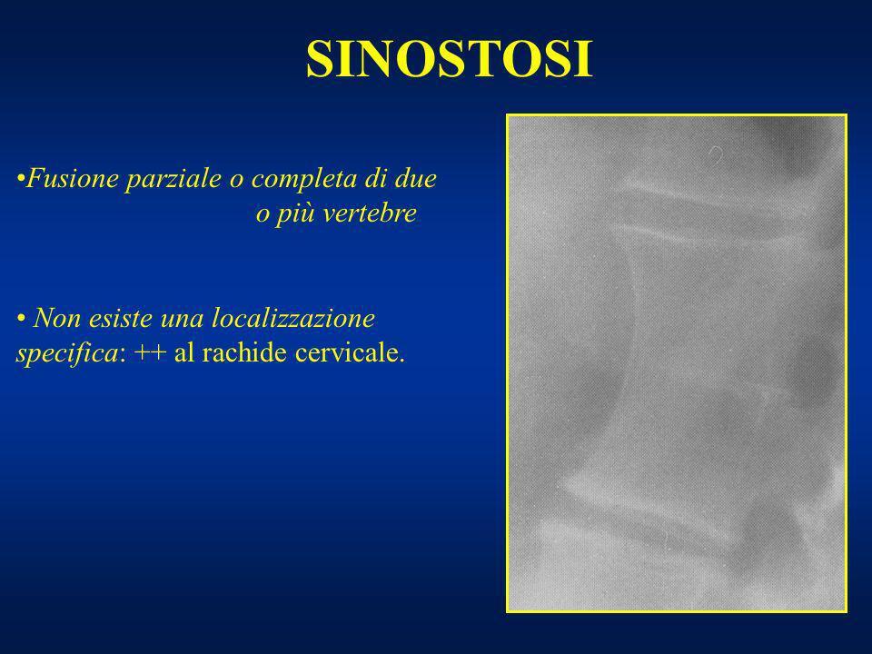 SINOSTOSI Fusione parziale o completa di due o più vertebre