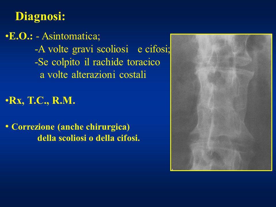 Diagnosi: E.O.: - Asintomatica; -A volte gravi scoliosi e cifosi;