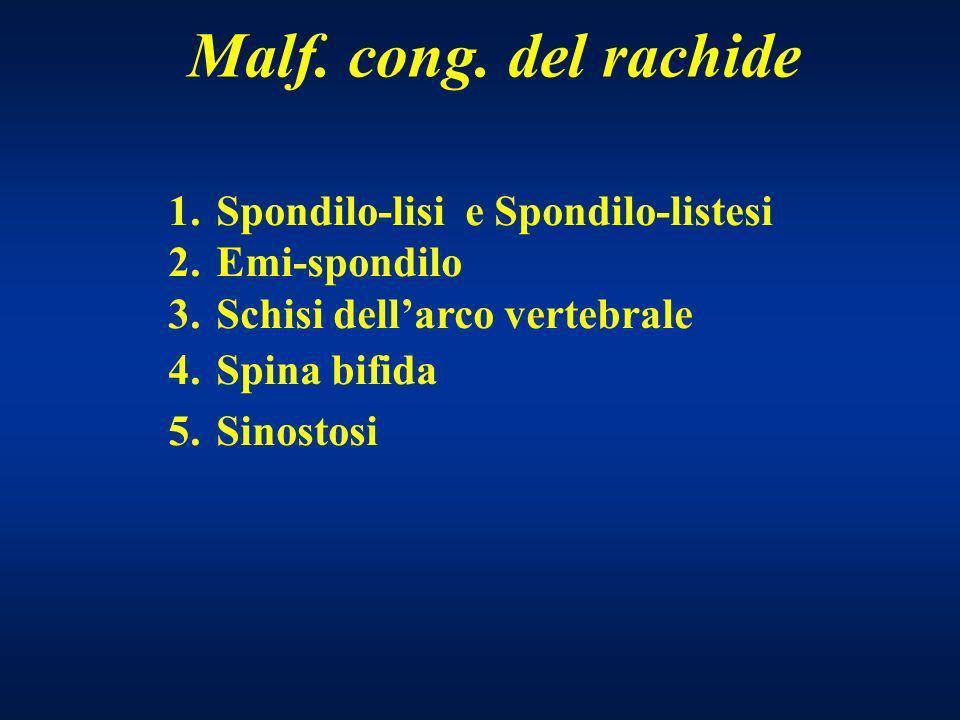 Malf. cong. del rachide Spondilo-lisi e Spondilo-listesi Emi-spondilo