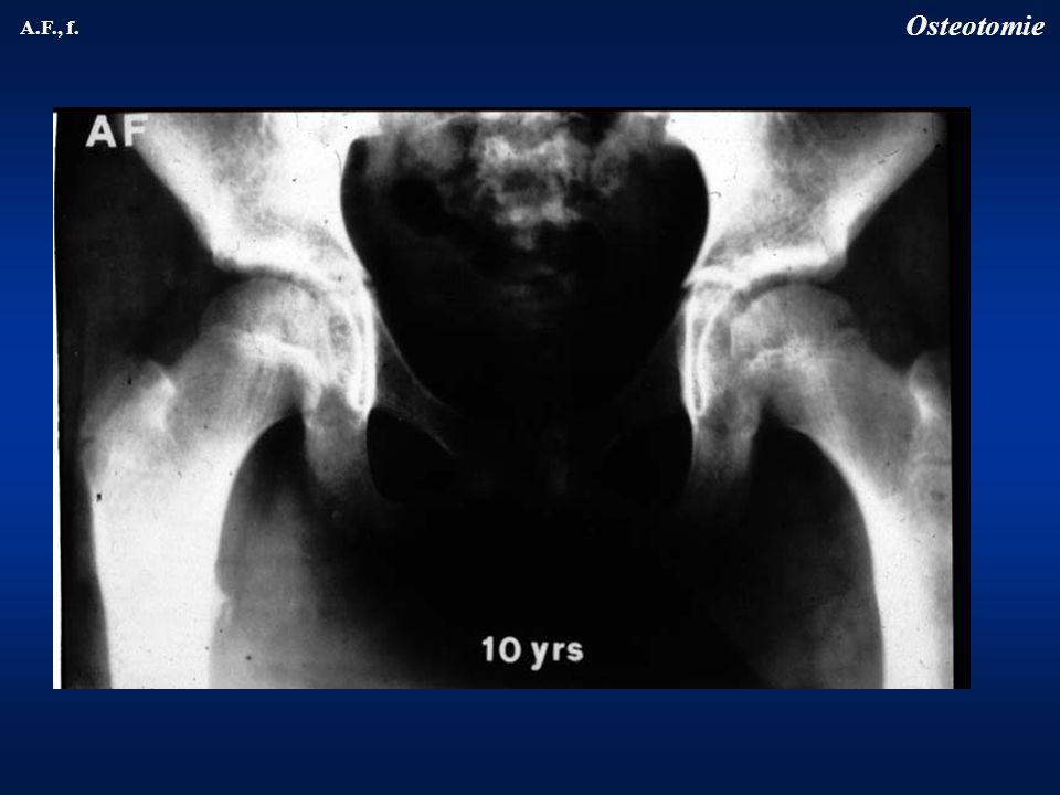 Osteotomie A.F., f.