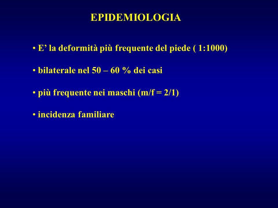 EPIDEMIOLOGIA E' la deformità più frequente del piede ( 1:1000)