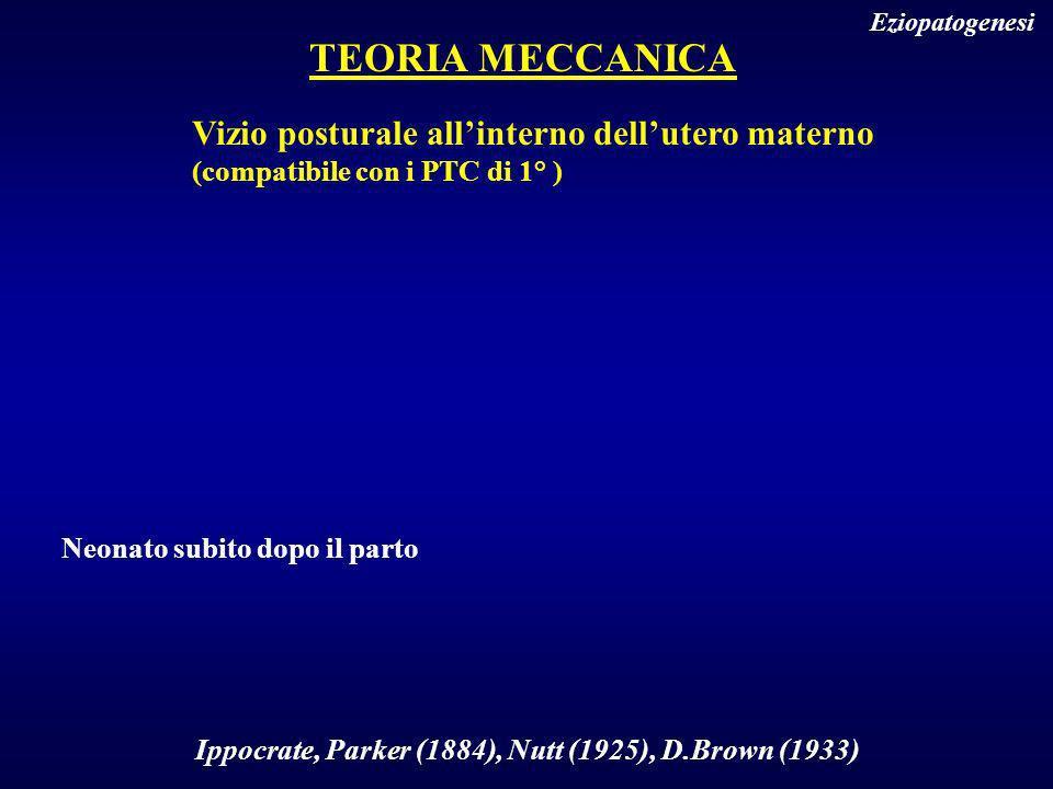 TEORIA MECCANICA Vizio posturale all'interno dell'utero materno
